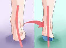 Achilles Tendinopathy correction