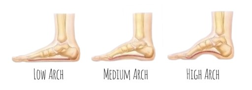 different types of foot arches