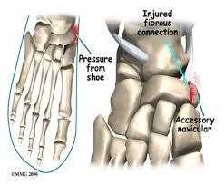 image showing areas of kohler's disease on foot