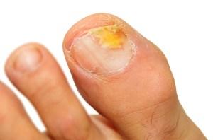 fungal toenail - Fungal Toenails and Onychomycosis