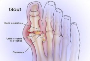 gout1 448x304 300x204 - Foot and Ankle Arthritis