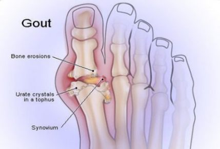illustration showing gout in foot