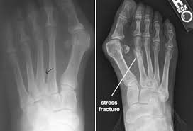 xray of stress fracture