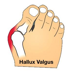 halluxvalgisv2 - Bunion Surgery