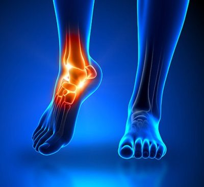 Ankle Pain Podiatry