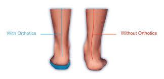 kneepain3 - Knee Pain