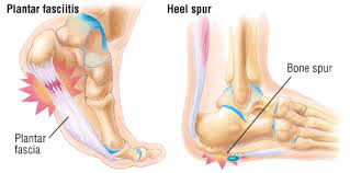 sw4 - Shockwave Therapy for Heel Pain and Heel Spurs