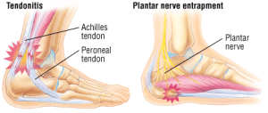 trappednerve 300x127 - Heel Pain and related conditions