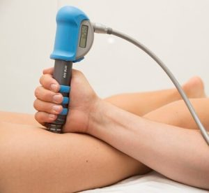 hamstring1 e1520317307264 - Shockwave Therapy for Hamstring Tendinopathy