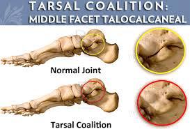 tarsal3 - Tarsal Coalition