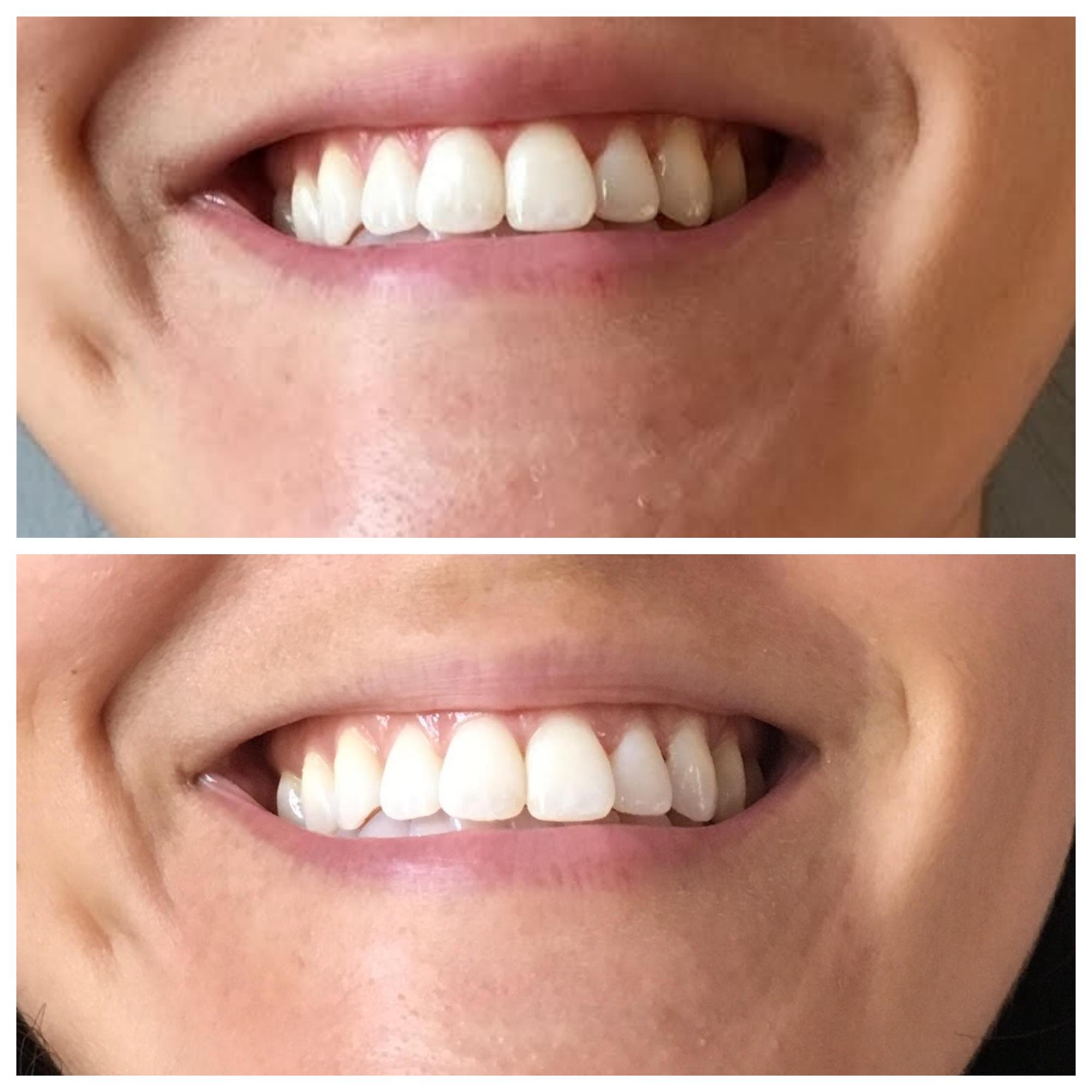 This whitening method saved me $500!! It's insane and it works! #teethwhitening #smile #athometeethwhitening