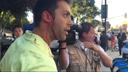 trump supporter bleeding