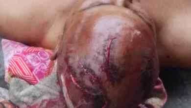 Photo of Man Butchered To Death, Many Others Injured As Onola, Agarawu Boys Battle For Supremacy In Lagos Island
