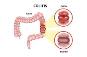 Ulcerative Colitis  Conditions We Treat  The GI Unit