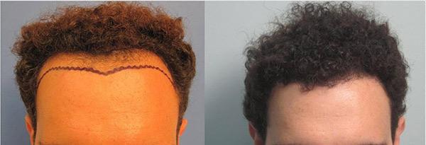 hair-transplant-los-angeles12