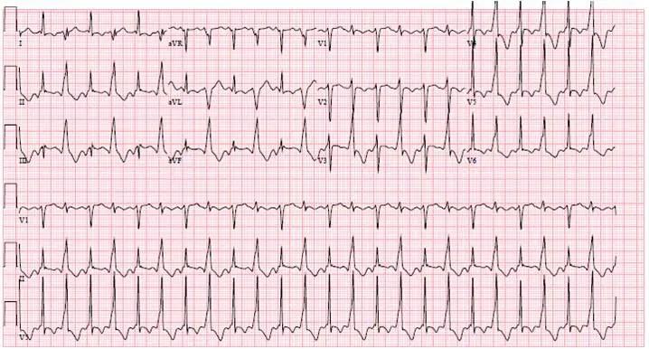 EKG29