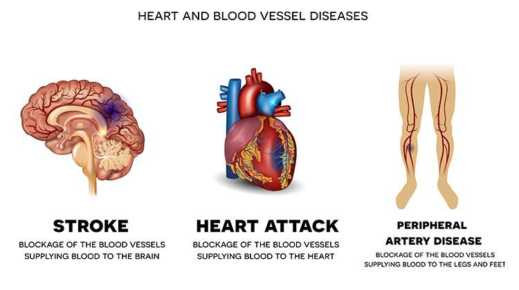 Chronic complications of Diabetes. Heart and blood vessel diseases