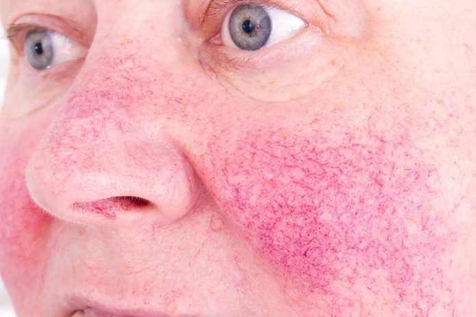 Rosacea Makeup Tricks That Clear Skin In Minutes The Healthy