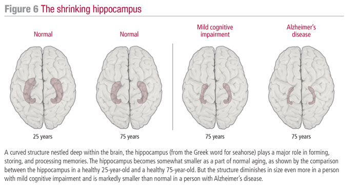 the-shrinking-hippocampus-700