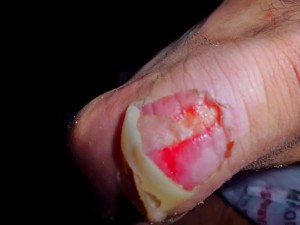 A Hiker's Guide to Blister Management