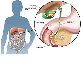 Gallstones (Cholelithiasis)