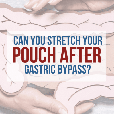 Can-you-Stretch-your-pouch-after-gastric-bypass