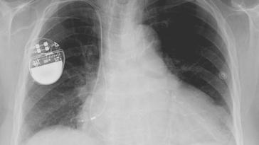 In the Hands of Hackers, Your Pacemaker is a Murder Weapon