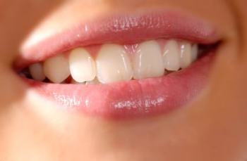 Clenching or Grinding your Teeth: Bruxism