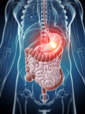 3d rendered illustration - painful stomach