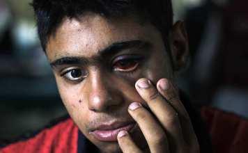 Breaking News Kashmir, Kashmir, Kashmir conflict, kashmir pellet, pellet in kashmir