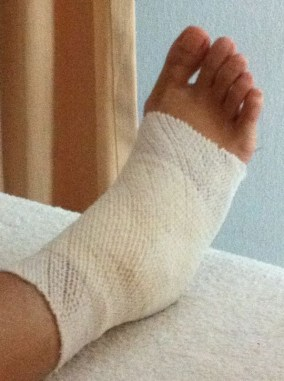 bandagedfoot