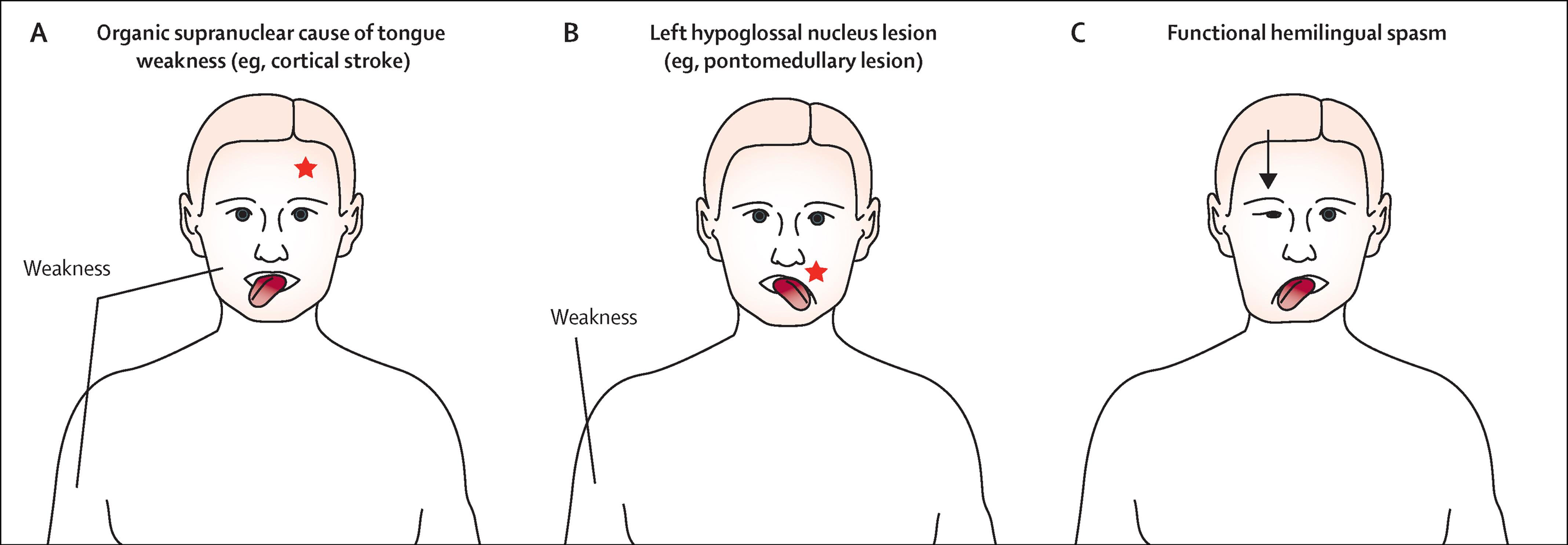 Cranial Functional Psychogenic Movement Disorders