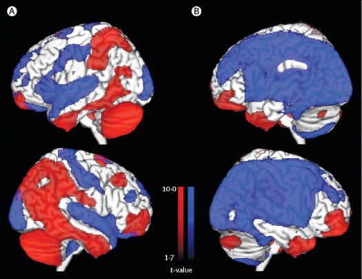 Image result for RETURNING FROM OBLIVION: IMAGING THE NEURAL CORE OF CONSCIOUSNESS