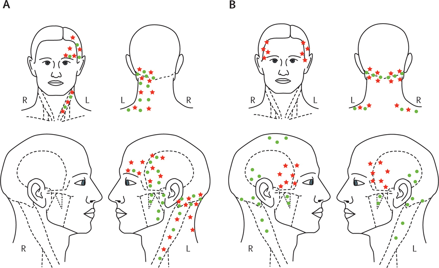 Origin Of Pain In Migraine Evidence For Peripheral