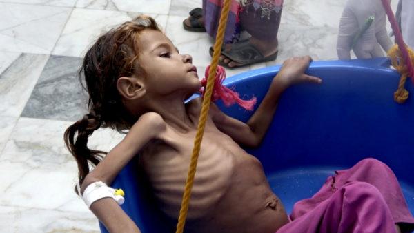 Amid Renewed Saudi Offensive, 5.2 Million Children In Yemen Now Face Starvation