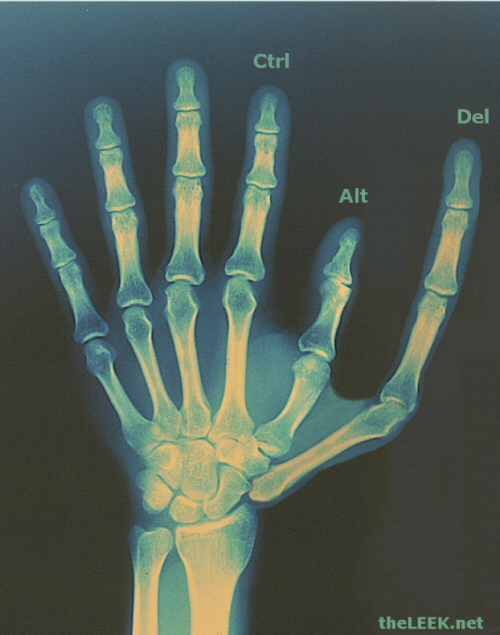 The six digit man - a next step in evolution?
