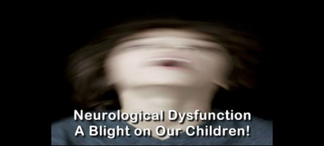 neurological dysfunction 2