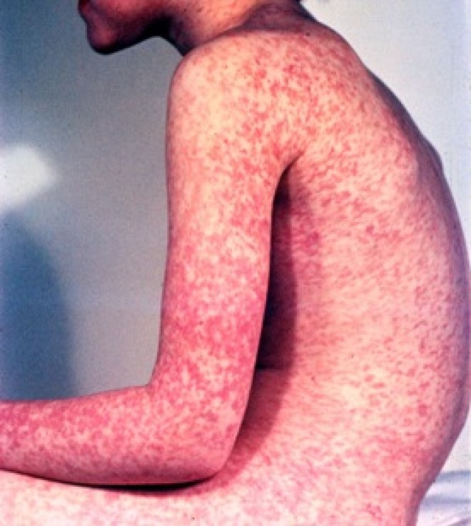 Measles boy sideview