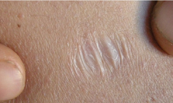 stretch marks how to remove