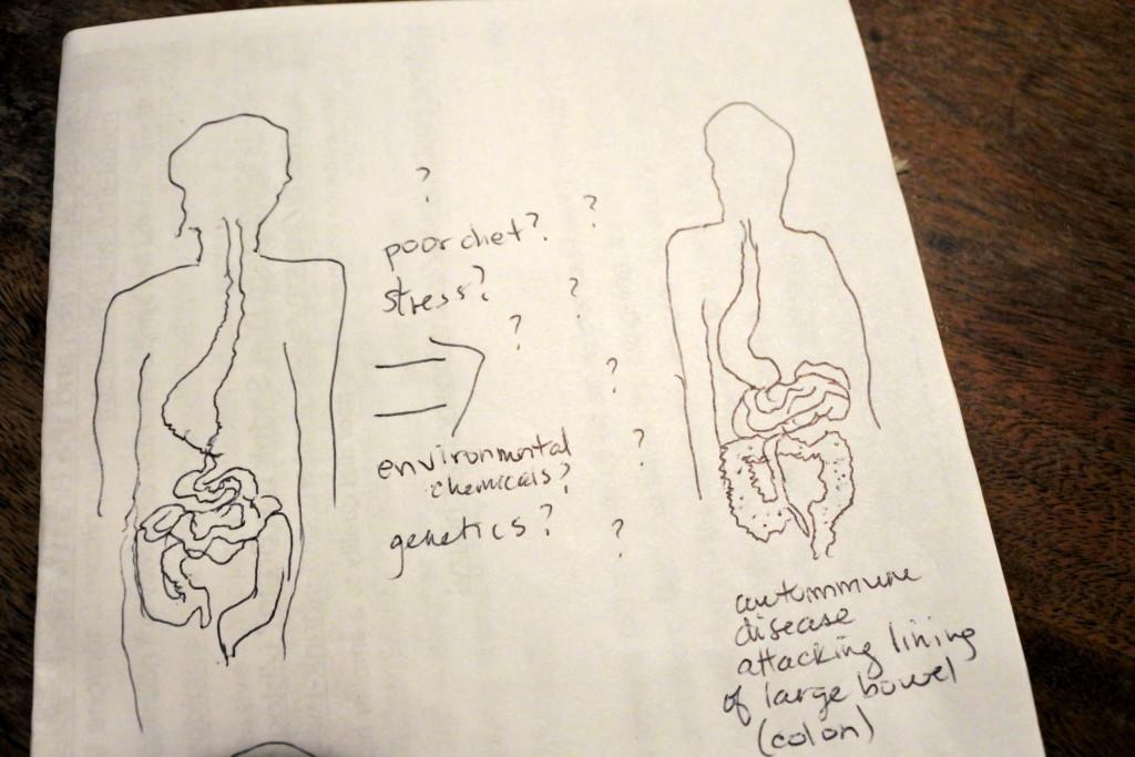 ulcerative colitis ottawa ontario colon cancer j-pouch pregnancy inflammatory bowel disease surgery