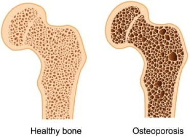 healthy bone vs osteoporotic
