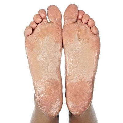 The Natural Callus Therapy