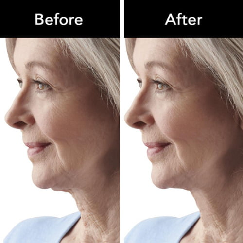 Neck Wrinkle Reducing Therapy Device1