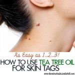 Tea Tree Oil for Skin Tags   Quick Natural Remedy
