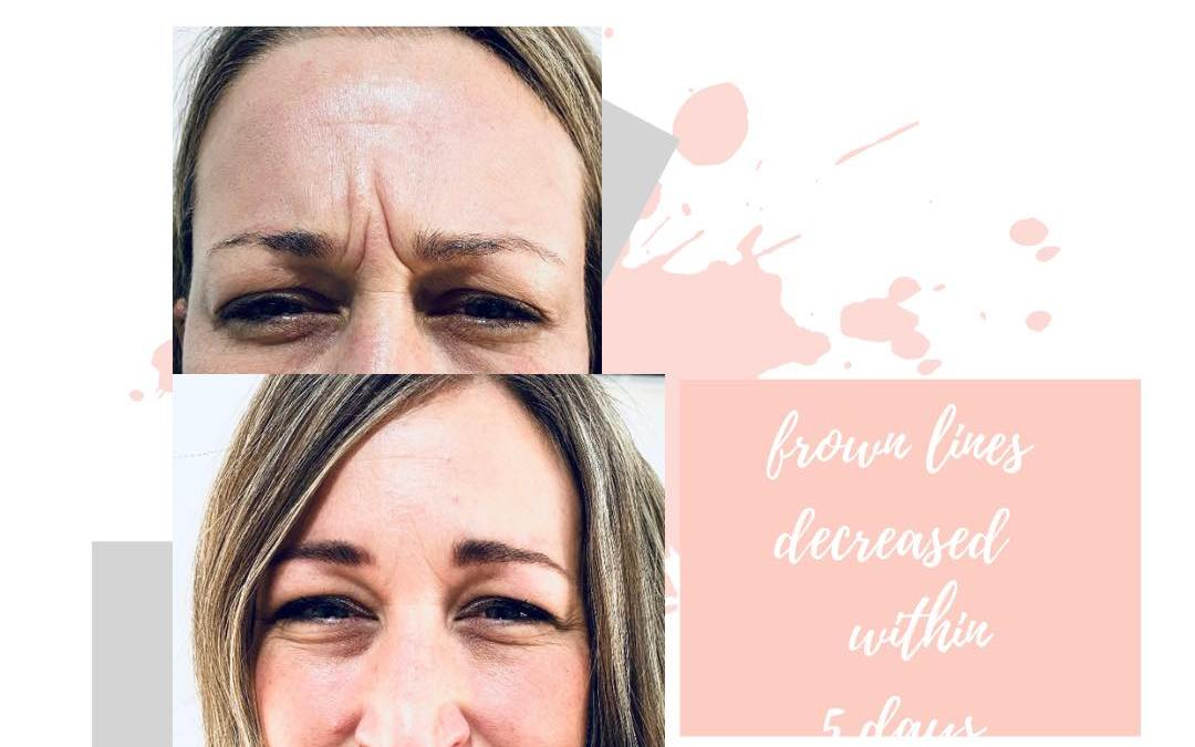 My Skin Journey with Alphen Aesthetics