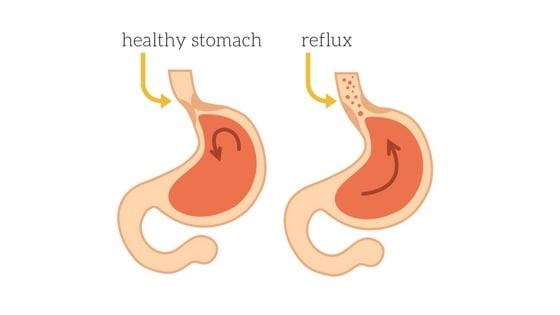 laryngeal reflux