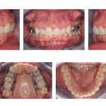 SmileMaker Orthodontics- Progress Report