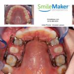 SmileMaker Update