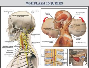 whiplash national trial lawyers top 100
