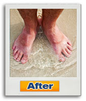 The Neuropathy Solution Program  Image of feet after using NSP
